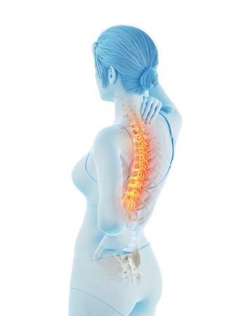Illustration médicalement précise en rendu 3D d'une femme ayant mal au dos