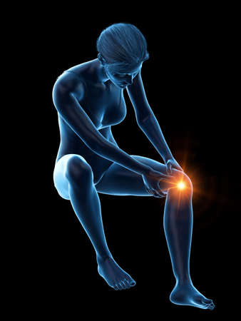 3d rendered medically accurate illustration of a woman having a painful knee