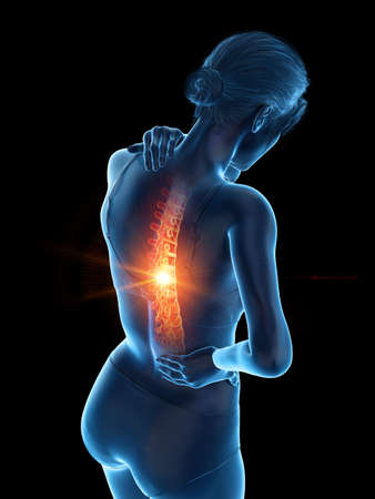 3d rendered medically accurate illustration of a woman having a painful back Stock fotó