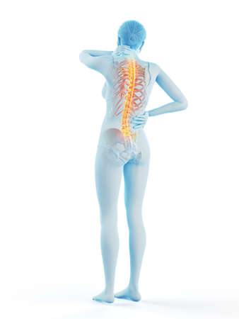 3d rendered medically accurate illustration of a woman having a backache
