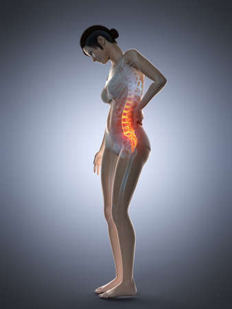 3d rendered medically accurate illustration of a woman having a painful back