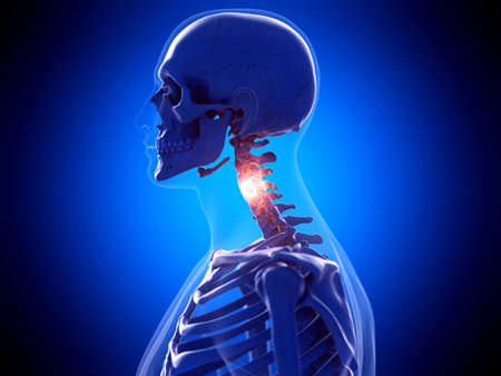 3d rendered medically accurate illustration of a painful neck