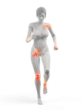 3d rendered medically accurate illustration of a woman having painful joints while walking