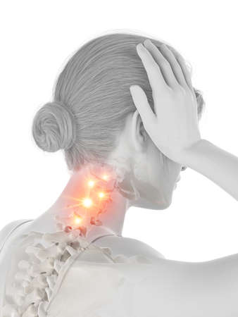 3d rendered medically accurate illustration of a woman having a painful neck