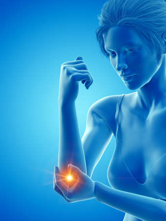 3d rendered medically accurate illustration of a woman having a painful elbow Reklamní fotografie