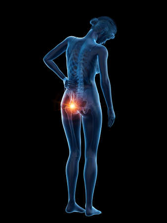 3d rendered medically accurate illustration of a woman having a painful hip
