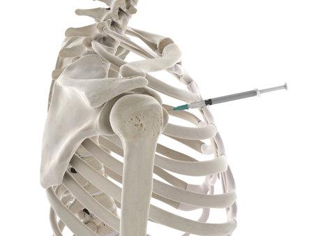 3D gerenderte medizinisch genaue Darstellung einer Schulterinjektion