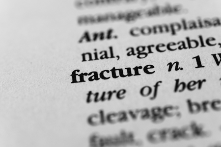 breakage: Fracture Stock Photo