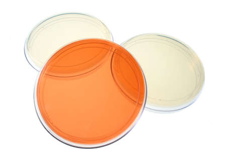 Several petri dishes for medical research photo