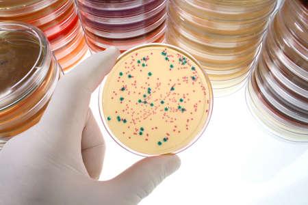 laboratorio clinico: Mano enguantada la celebración de una cápsula de Petri  Foto de archivo