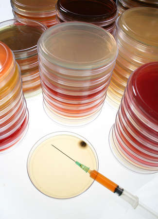 Petri dish with syringe with blood sample photo