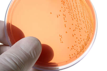 bacteria cell: Gloved hand holding a Petri dish