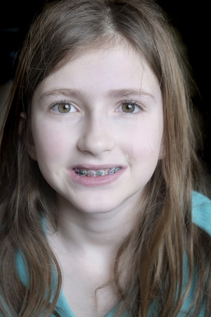 Young girl smiling with braces on her teeth Stock Photo