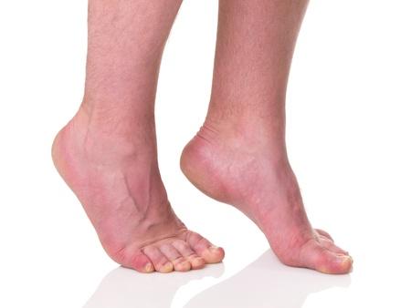 Hombre maduro descalzo con la piel seca y las uñas de pie en punta de los dedos de los pies aislados sobre fondo blanco Foto de archivo - 15548917