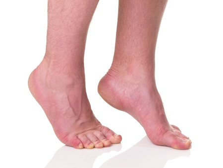 Mature man barefoot with dry skin and nails standing on tips of toes isolated on white background photo