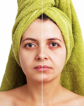 pallino: Donna con la pelle spotty con pori profondi e punti neri e pelle morbida guarito Archivio Fotografico