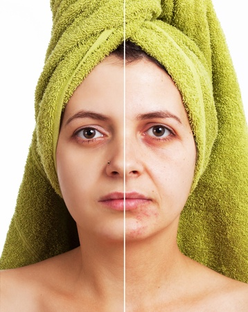 spotty: Woman with spotty skin with deep pores and blackhead and healed soft skin  Stock Photo