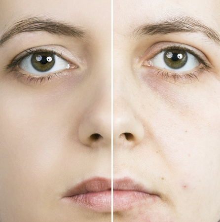 bad condition: Woman with spotty skin with deep pores and blackhead and healed soft skin  Stock Photo