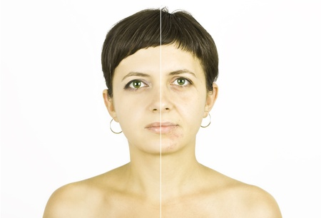 Woman with spotty skin with deep pores and blackhead and healed soft skin photo