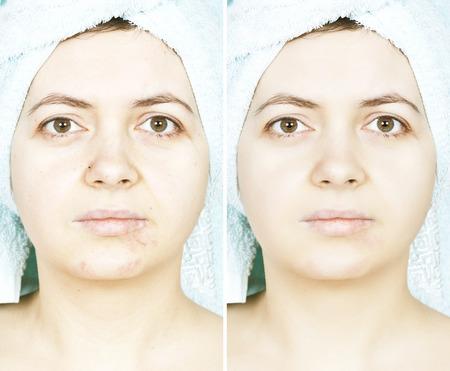 흉터와 여자의 피부 전후 스톡 콘텐츠