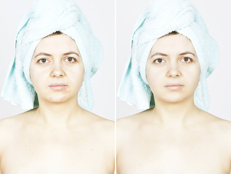 Before and after woman skin with scars photo