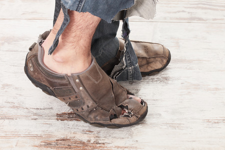 man legs: concept of a poor person and his feets