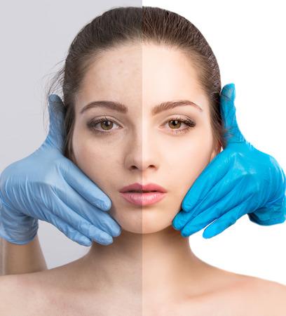 Junge Frau, vor und nach der Retusche, Schönheitsbehandlung. Vor und nach der kosmetischen Operation. Anti-Age-Behandlung, die Entfernung von Akne, Retusche. Lizenzfreie Bilder