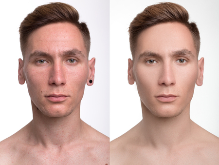 retouch: Face of handsome man before and after retouch. Before and after cosmetic operation.  anti-aging  therapy, removal of acne, retouching. studio shot. Stock Photo