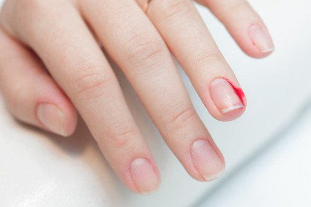 the girl suffered a cut finger on the manicure. inattentive behavior of  manicurist