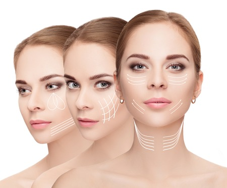 woman faces with arrows over white background. Face lifting con Stock Photo - 72372214