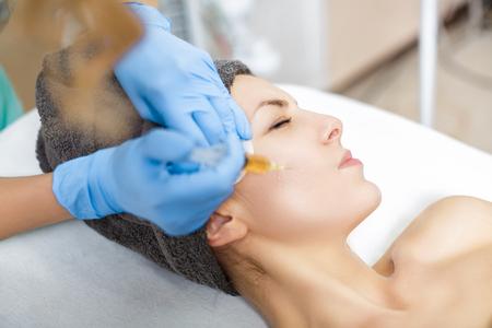 Verfahren Plasmolifting Injektion. Plasma-Injektion in die Haut der Wangen des Patienten Standard-Bild - 75113031