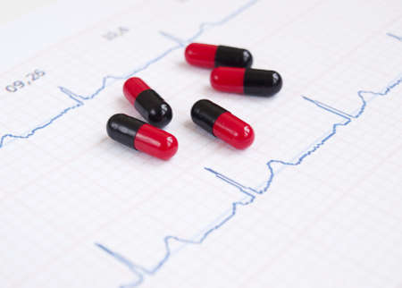 electrocardiograph: Closeup of a heart rate monitor printout with pills Stock Photo