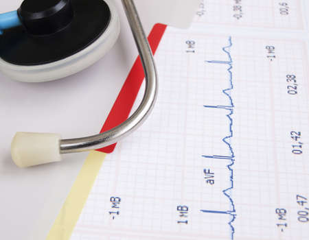 heartrate: Stethoscope  on a printout of a heartrate graph Stock Photo
