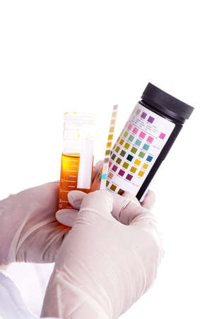 Urine test stripes examined by a nurse or doctor