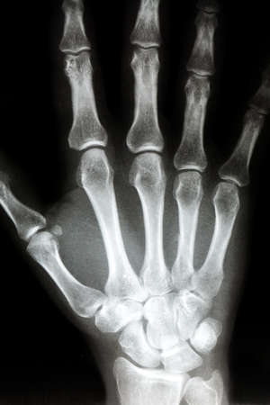 thumb x ray: X Ray of the Right hand. Bones in the hand