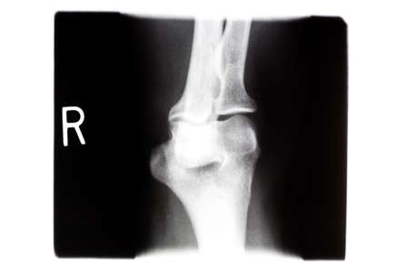 X Ray Of A Human Knee Bones In The Right Knee Stock Photo Picture