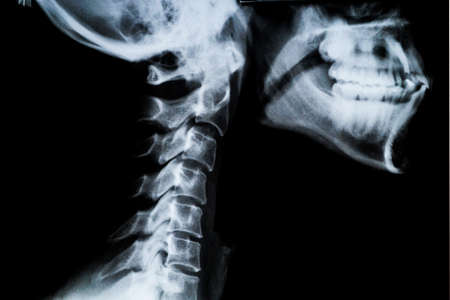 X ray of Human neck and Jaw