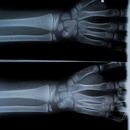 thumb x ray: X-Ray of a pair of a Humans hand. Right and Left on same picture