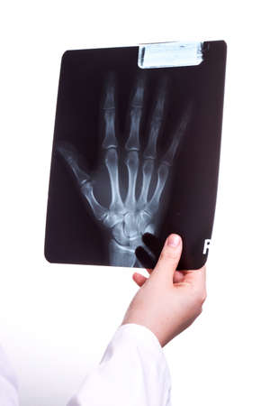 Doctor exams a X Ray picture of her Patients Hand photo