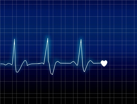 ECG Electrocardiogram Stock Photo - 12378188