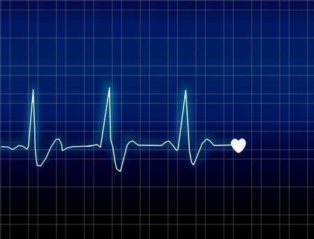 ECG Electrocardiogram photo