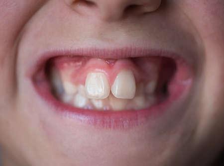 Problems with the teeth of a young boy. Not the correct bite.