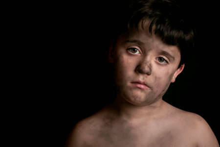 maltrato: El muchacho triste con la cara sucia