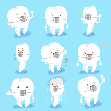 retention: cartoon tooth wear brace express all kinds of emotions Illustration