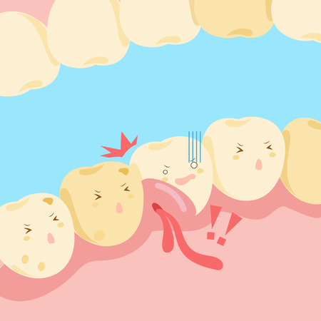 swelling: cartoon tooth with gingival swelling and bleeding