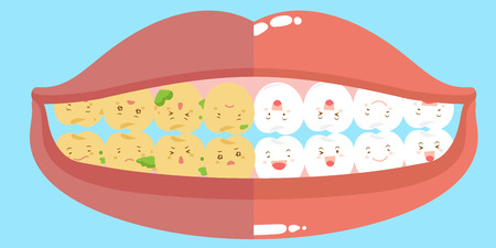 decay: cartoon health and tooth decay great for your concept Illustration