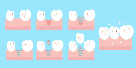 implantation: cute cartoon tooth implant smile happily with gum