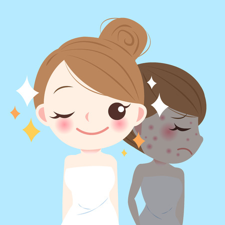 Beauty cartoon skincare woman before and after. Illustration