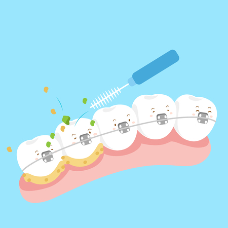 cute cartoon tooth wear brace with brushes Illustration