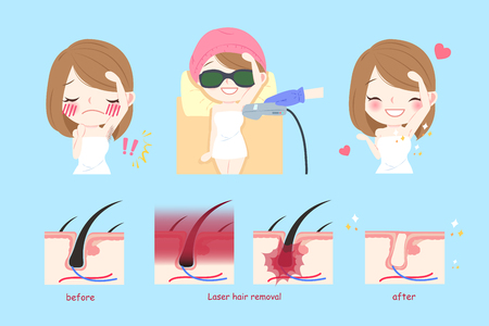 beauty cartoon woman smile happily with laser armpit hair concept Illustration